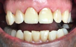 Pine Mountain Family Dentistry